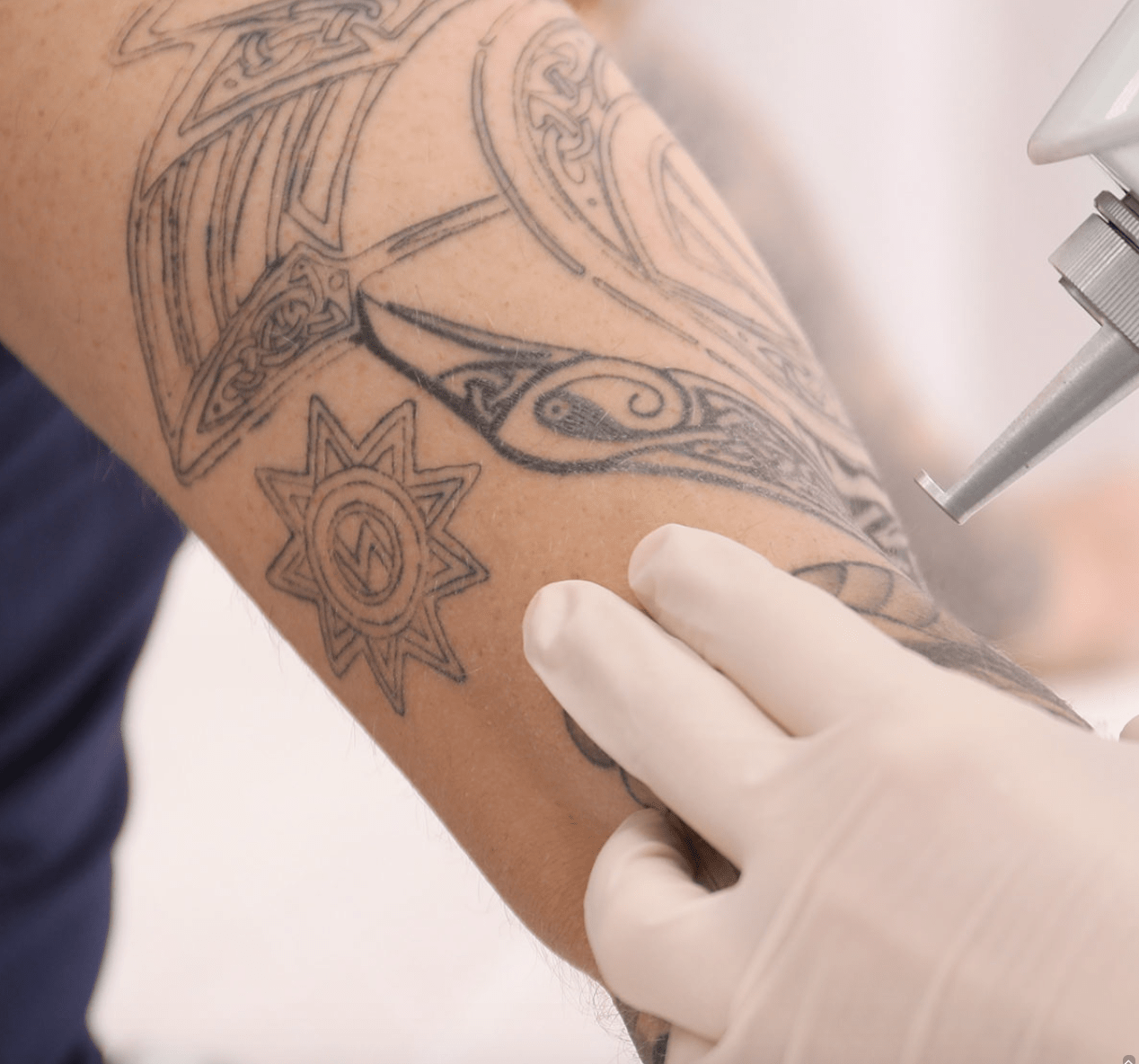 Removing Tattoos with Sound: RAP Tattoo Removal | Virtuul News